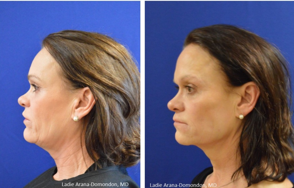 Before & After Ultherapy Treatments in Tacoma WA